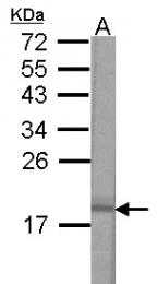 GTX121462 - VAMP-2 / Synaptobrevin-2