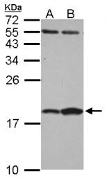 GTX121467 - FABP7