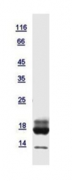 GTX121469-pro - Retinol-binding protein 5 / RBP5