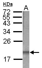 GTX121486 - CMBL