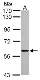 GTX121504 - ITFG1
