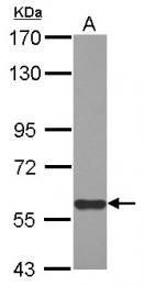 GTX121542 - MIER3