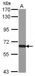 GTX121545 - NAPRT1