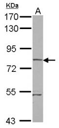 GTX121574 - RHOBTB1