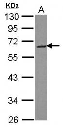 GTX121583 - SMOC2