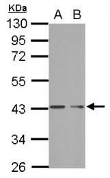 GTX121618 - PHF7