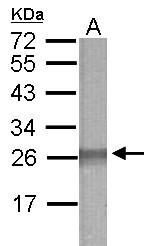 GTX121630 - TRIM59 / TSBF1 / RNF104