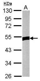 GTX121644 - ZNF322A