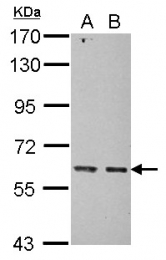 GTX121658 - MRPP3