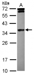 GTX121670 - Histone H1.4