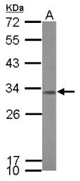 GTX121676 - CCDC44