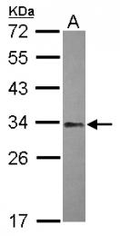 GTX121922 - NFYB