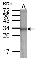 GTX122011 - RFPL2 / RNF79