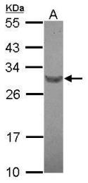 GTX122058 - RFPL4B / RNF211