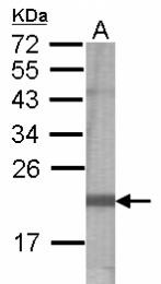 GTX122265 - Secernin-2 (SCRN2)