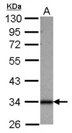 GTX122365 - Sideroflexin-1 (SFXN1)