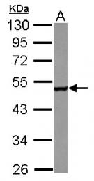 GTX122410 - CPEB1