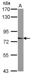 GTX122488 - PARP6