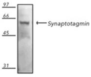 GTX12255 - VAMP-1 / Synaptobrevin-1