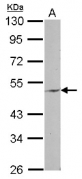 GTX122619 - ENPP6