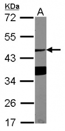 GTX122674 - ASGR1