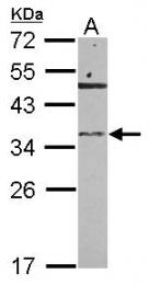 GTX122679 - RNASET2