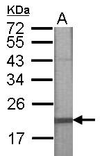 GTX122787 - Casein kinase I delta
