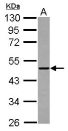 GTX122789 - THUMPD2