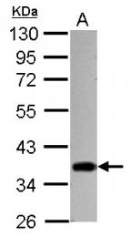 GTX122827 - STUB1 / CHIP