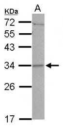 GTX122888 - CCDC127