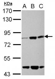 GTX122894 - Kelch-like protein 22