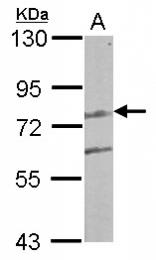 GTX122895 - LCMT2