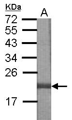 GTX122968 - DNAJB8