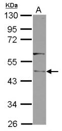 GTX123072 - RLBP1L1