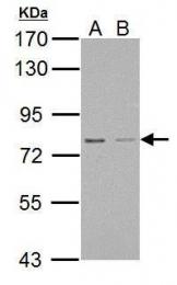 GTX123170 - Protein Red