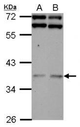 GTX123260 - DNAJB7 / HSC3