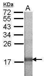 GTX123261 - Relaxin receptor 1 / RXFP1