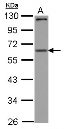 GTX123357 - CPEB1
