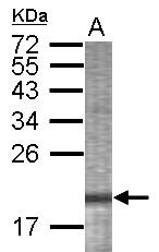 GTX123397 - TP53I13