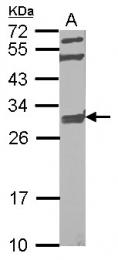 GTX123416 - NIPSNAP2 / GBAS