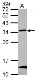 GTX123417 - NIPSNAP2 / GBAS