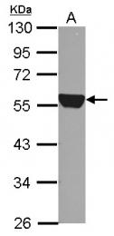 GTX123426 - ALDH1