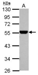 GTX123427 - ALDH1