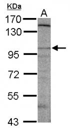 GTX124116 - DLGAP2