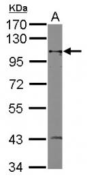 GTX124132 - MSH2