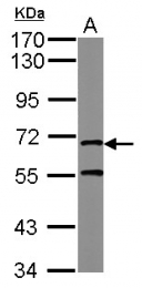 GTX124144 - MRE11