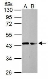 GTX124225 - Dystroglycan