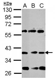 GTX124268 - NEUROD1