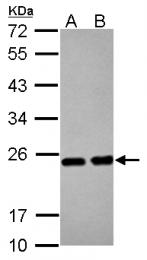 GTX124294 - Superoxide dismutase 2 / SOD2