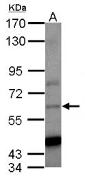 GTX124298 - CCT8 / TCP1 theta